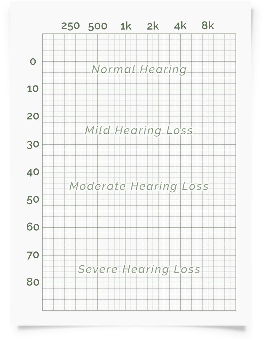 Online Hearing Test Audiogram Printout