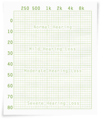 audiogram grid
